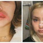 У россиняки после уколов красоты лопнула губа