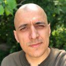 Попал в мир «безресничия»: Больной раком Эд Мацаберидзе рассказал о последствиях химиотерапии